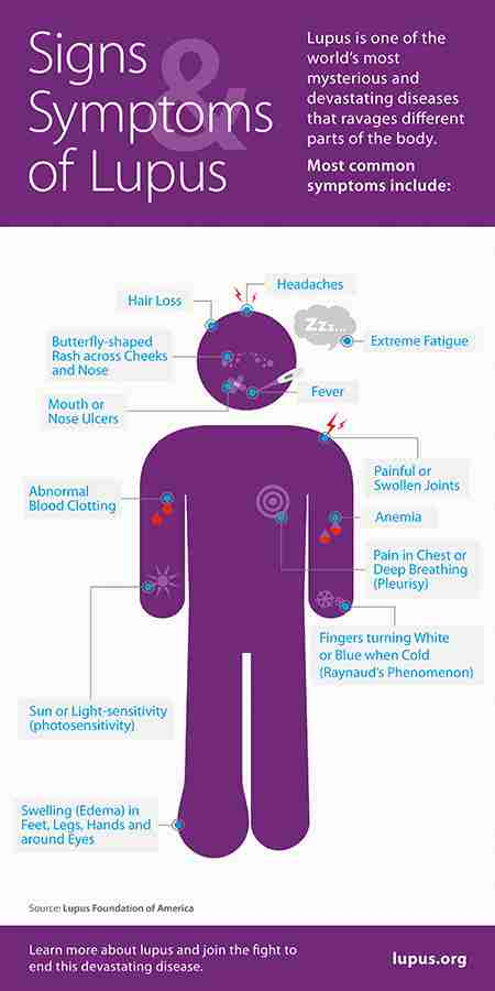 Lupus Signs_and_Symptoms