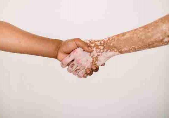 one hand holding another with Vitiligo skin support group